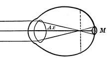 occhio miopico con cerchio diffusivo sulla rètina