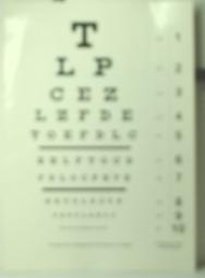 immagine ripresa mediante fotocamera messa a fuoco su un punto piú vicino del normale (miopía)